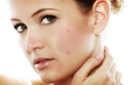 Лечение проблемной кожи лица у косметолога
